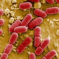 مقال – أكثر مكان لتكاثر الجراثيم في المنزل وأفضل طرق محاربتها