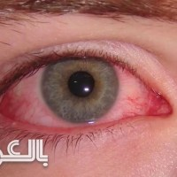 ما أسباب ظهور الدم في زاوية العين؟