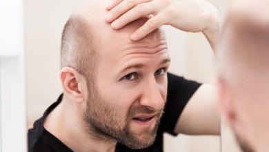 هل تعاني من الصلع؟ دراسة حديثة تكشف عن علاج محتمل