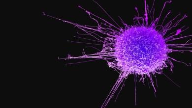 ما هي العوامل التي تزيد احتمال الإصابة بالسرطان؟ وكيفيّة الوقاية منه؟