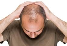 صورة كيف يؤثر الإجهاد و التوتر على صحة الشعر؟