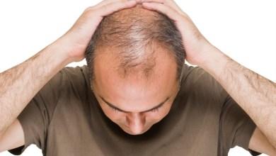 كيف يؤثر الإجهاد و التوتر على صحة الشعر؟