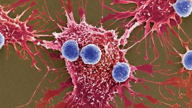 كيف تحمي نفسك من خطر الإصابة بالسرطان؟