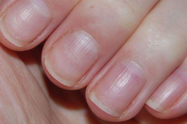 Почему появляются полосы продольные на ногтях: Продольные ...