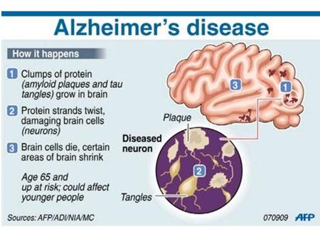 Brain Cholesterol May Increase Alzheimer's Disease Risk