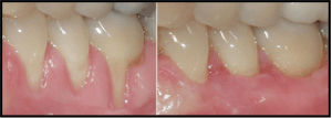 Gum Grafting before & after