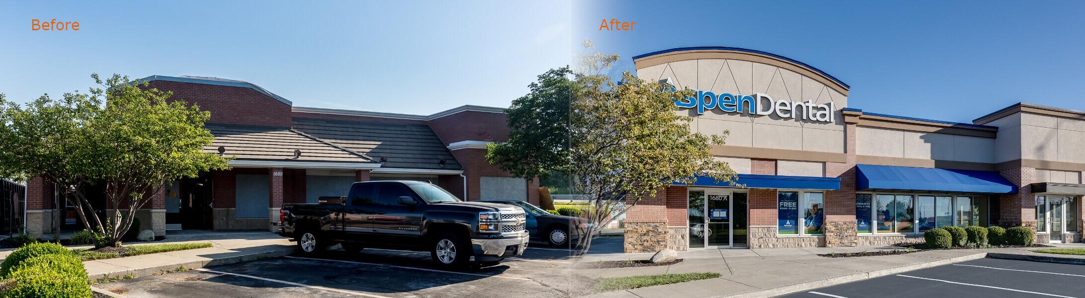 Aspen-Dental-Before-After