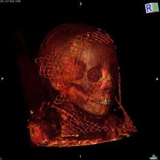 scanner-momies-elephantine-assouan-haute-egypte