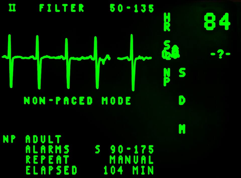 heart-beat-monitor