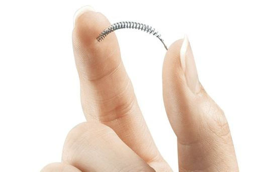 This image from Bayer Healthcare Pharmaceuticals shows the birth control implant Essure, which has been subject to thousands of injury reports from women and repeated safety restrictions by U.S. regulators. Bayer now says it will stop selling the device at the end of the year due to weak sales. (Bayer Healthcare Pharmaceuticals via AP)