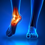 Arthritic Ankle Joint