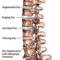 Image of the spine with a number of disc issues
