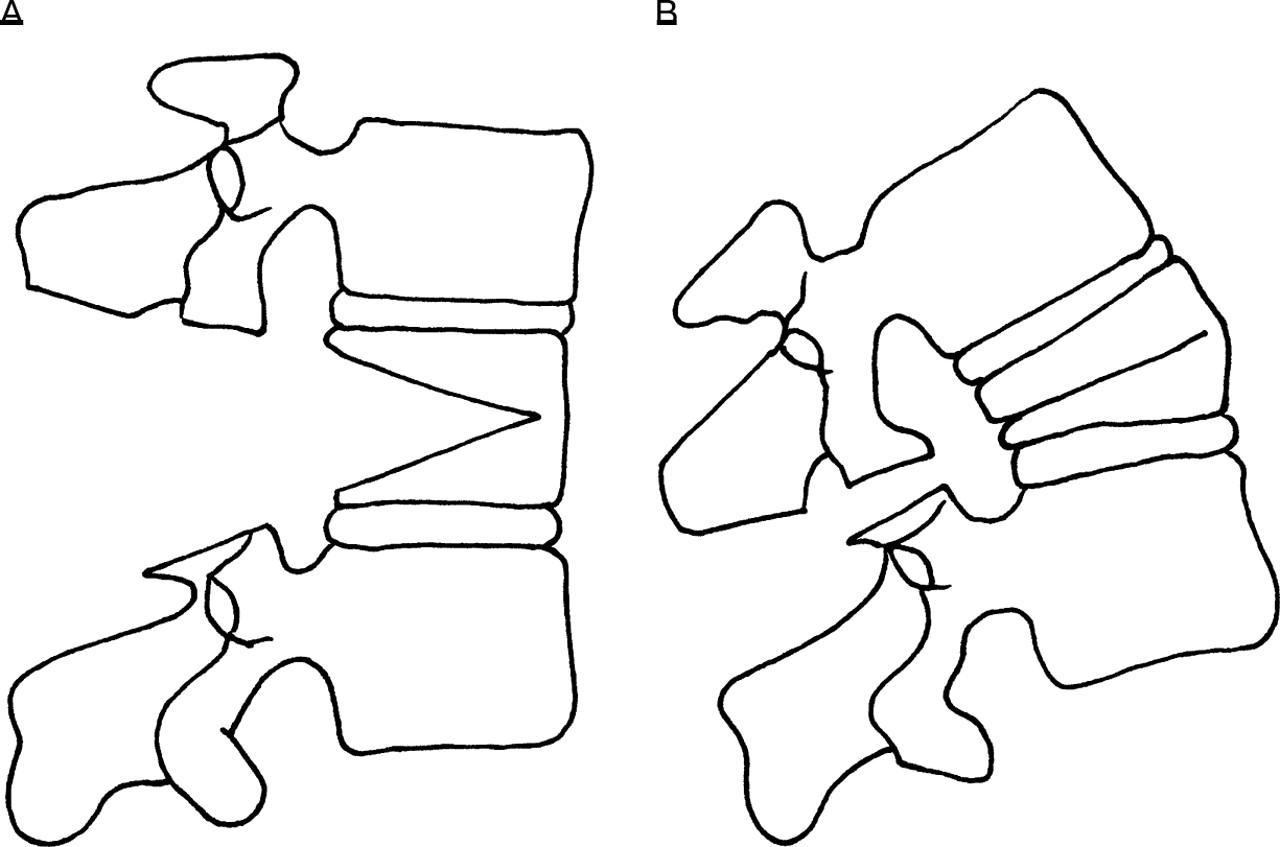 Lumbar Osteotomy For Correction Of Thoracolumbar Kyphotic