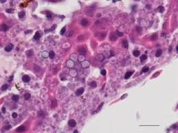Emerging Disease Further Jeopardize
