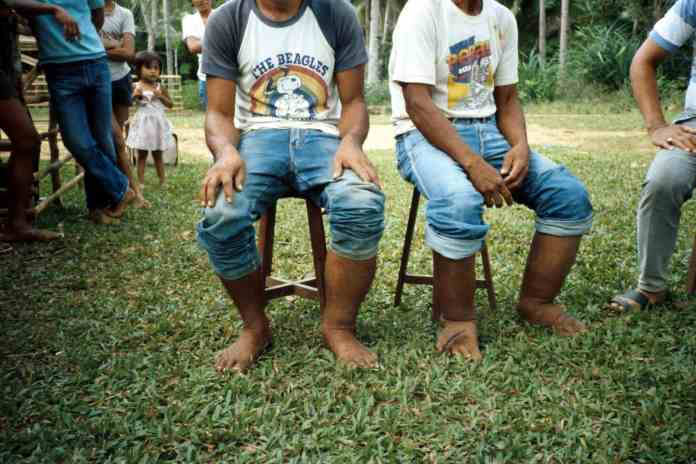 3D-scannng device can measure the legs of elephantiasis