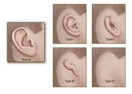implant a new ear