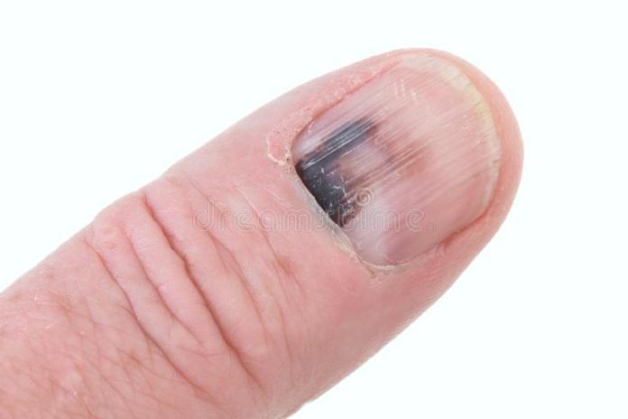 areflect nail biting habit