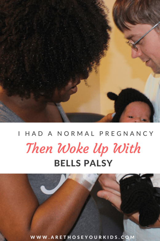 Having a healthy pregnancy, baby & complication free delivery is a blessing. Sometimes though, complications like bells palsy appear after baby is home from the hospital.