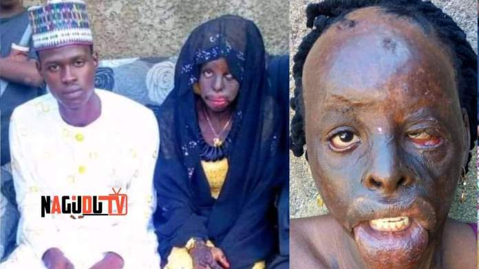 A Young Man Marries A Girl Who Is Escape From Marriage In Bauchi