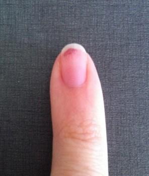 Finger, nagel