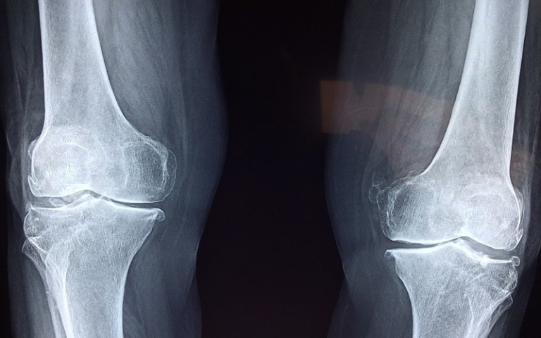 Xray of knees picture