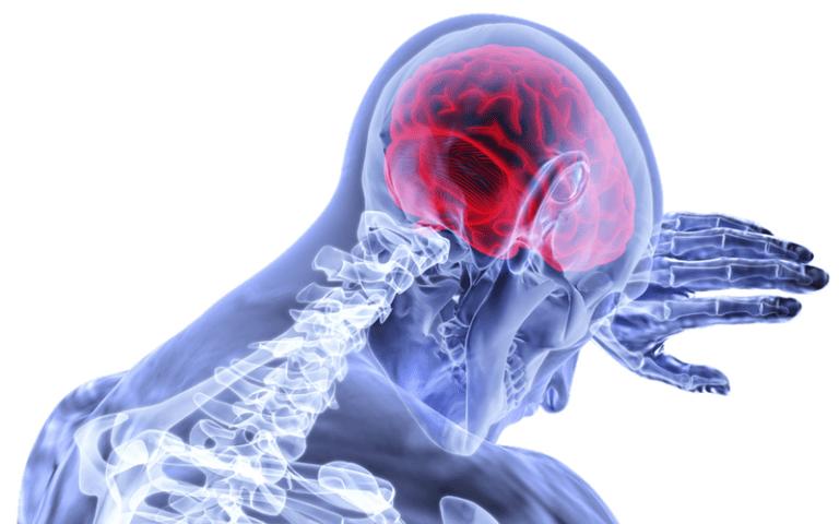 brain pain picture