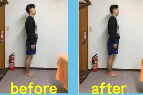 姿勢改善反り腰矯正