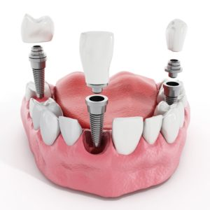 The timing of dental implants