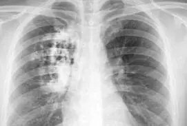 asbestos related lung cancer deaths on a par with mesothelioma deaths UK