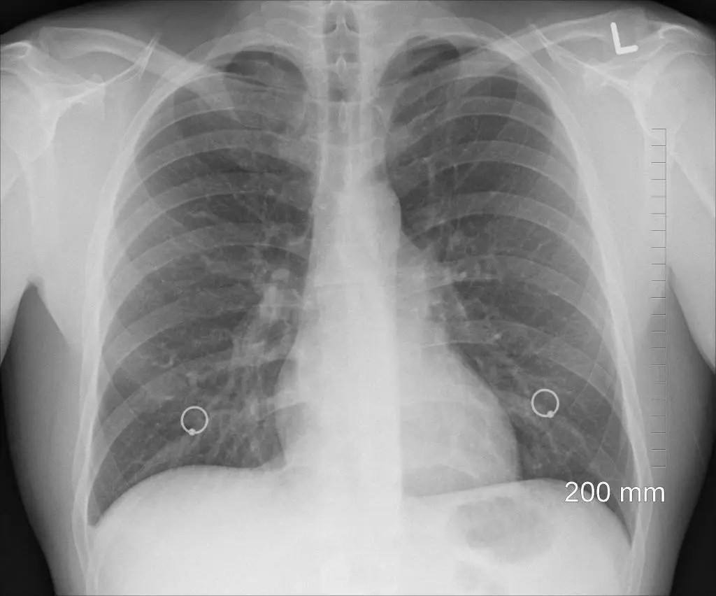x-ray asbestos in the lungs