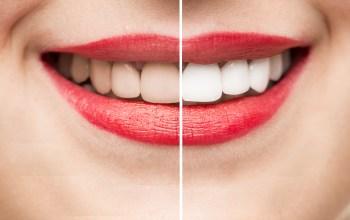 Comment fonctionne le blanchiment des dents?