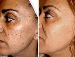 laser pigment reduction