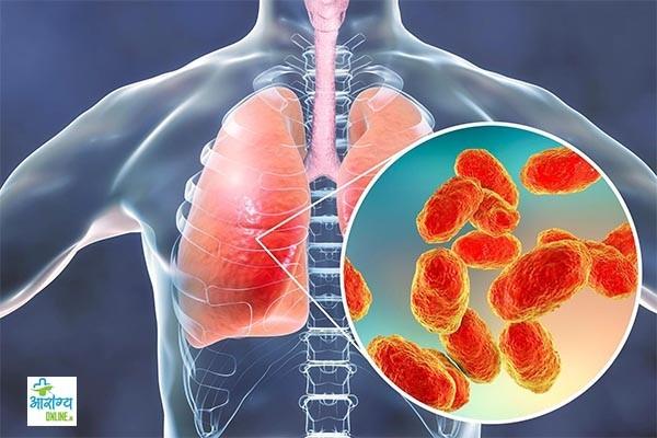 निमोनिया के लक्षण, निमोनिया कैसे होता है और निमोनिया पर रामबाण उपचार
