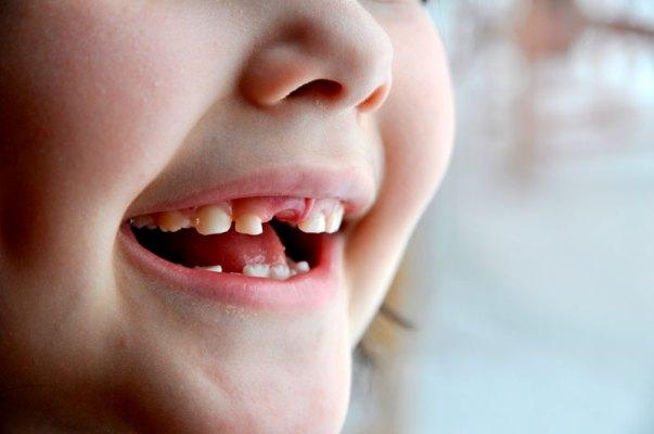 các vấn đề răng miệng trẻ nhỏ thường gặp