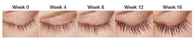 Latisse eyelash results