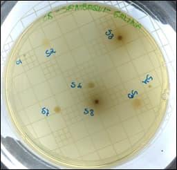 UFPR sequencia genoma de bactéria do Litoral de Guaratuba que degrada celulose 3