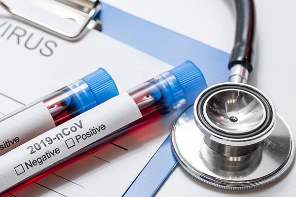 Com os cinco casos confirmados, o RN chega a 19 registros da doença