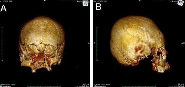 cranio-croacia