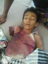 serangan jet saudi ke kebun mangga2