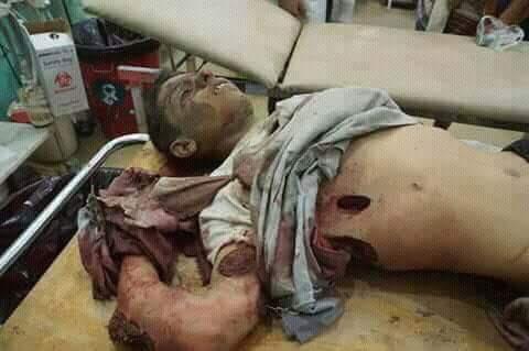 serangan saudi ke tenda pengungsi3