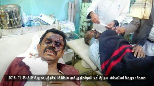 Para Korban Agresi Saudi