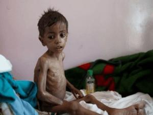 Kelaparan melanda Yaman