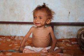 Krisis kelaparan di Yaman