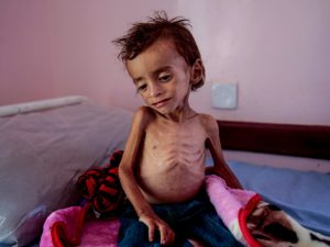 Kelaparan di Yaman, Yaman, Perang Yaman