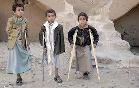 anak-anak-korban-perang-di-yaman