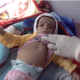 Menkes: Setiap 10 Menit Seorang Anak Meninggal di Yaman