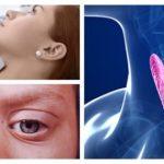 Diagnóstico y tratamiento de la tirotoxicosis