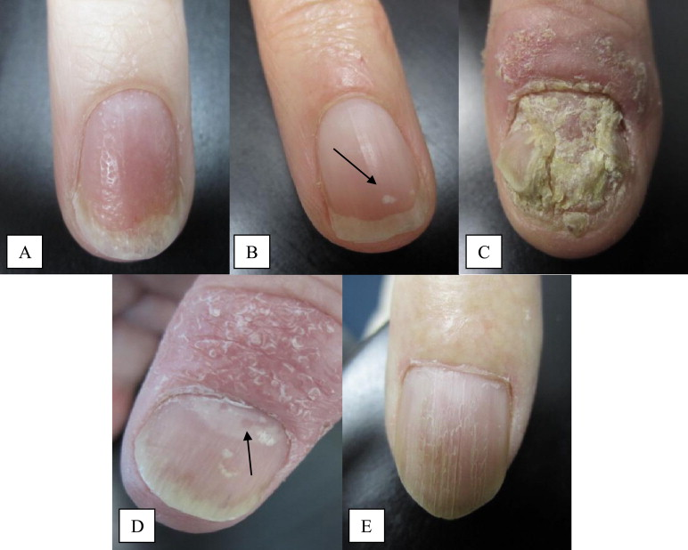 Nail Matrix Disease A Pitting B Leukonychia C
