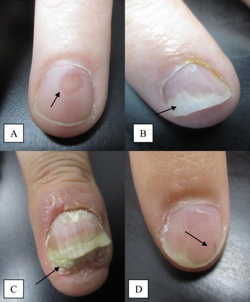 Nail Bed Disease A Oil Spot Changes B Onycholysis