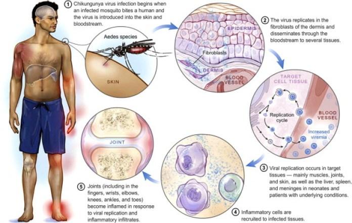Chikungunya virus pathogenesis: From bedside to bench - ScienceDirect